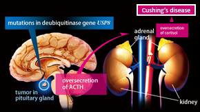 Genetics research demystifies fatal glandular disease