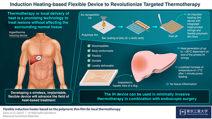 Induction Heating-based Flexible device to Revolutionize Targeted Thermotherapy
