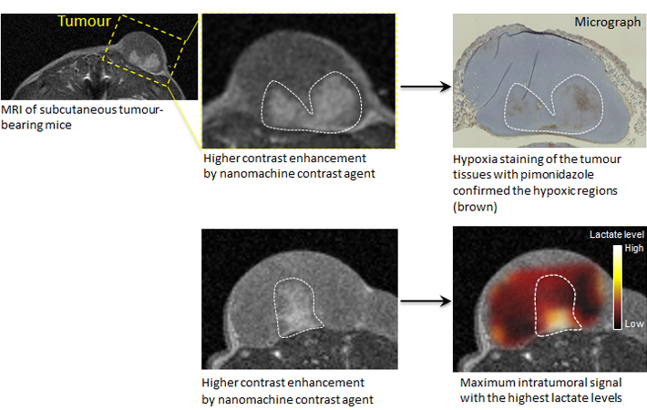 The nanomachine contrast agent may not only detect cancer with an MRI but also be effective in diagnosing its internal structure and malignancy. The nanomachine contrast agent produced stronger signals and made white the regions of low oxygen concentration and low pH levels thought to be especially malignant, even among cancer tissue. This effect was stronger in low-cost MRIs using lower magnetic fields. This means that MRI equipment existing at clinical sites can be used, and this new technology is expected to aid in diagnosing the degree of malignancy of cancers and their resistance to treatment.