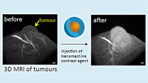 """Nanomachine Contrast Agent"" using existing MRI detects minimal cancer tissue with a highly sensitive visualization"