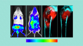 A reliable, easy-to-use mouse model for investigating bone metastasis