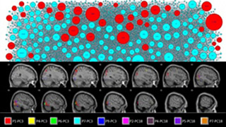 Markov-inverse-F measure: a network connectivity approach using MVPA of fMRI