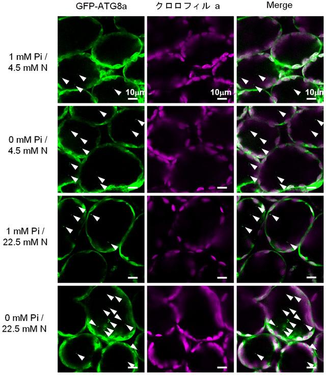 図2. 各栄養条件下のシロイヌナアズナ葉の細胞におけるオートファジックボディー形成の共焦点顕微鏡観察