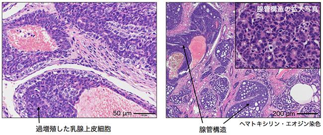 Nrk欠損の乳腺腫瘍の病理組織学的な解析
