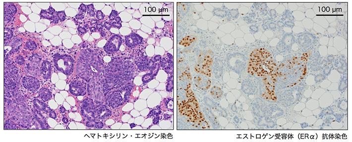 腫瘍形成前のNrk欠損の乳腺上皮細胞におけるエストロゲン受容体の発現