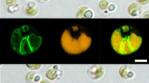 """大量のオイルを生産する""""最強藻類""""の秘密を解明―バイオ燃料の実用化に向け有力な手がかり得る―"""