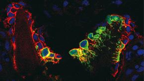骨の再生メカニズムを解明 ―骨を作る細胞の源と前駆細胞の住処を発見―