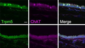 体を外敵から守る化学感覚細胞のマスター因子を同定