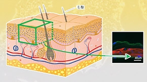 放射線による皮膚への影響を解明