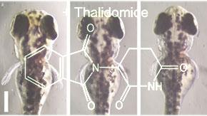 サリドマイドが手足や耳に奇形を引き起こすメカニズムを解明