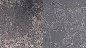 iPS細胞における放射線応答の遺伝子発現変化を解明